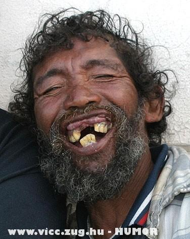 Jók a fogaid Laci