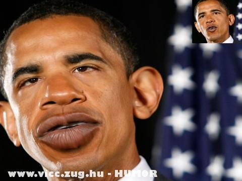 Mûtét elõtt Barack Obama