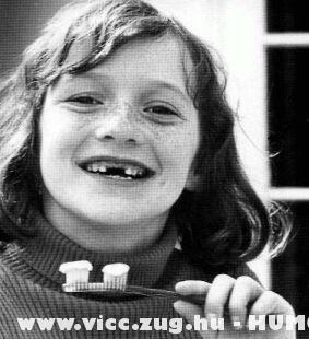 Gazdaságos fogkefe