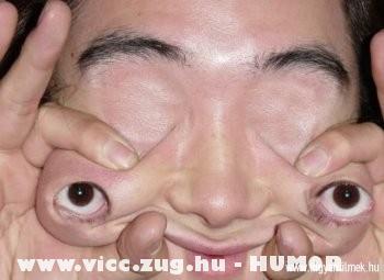 Teleszkópos szem
