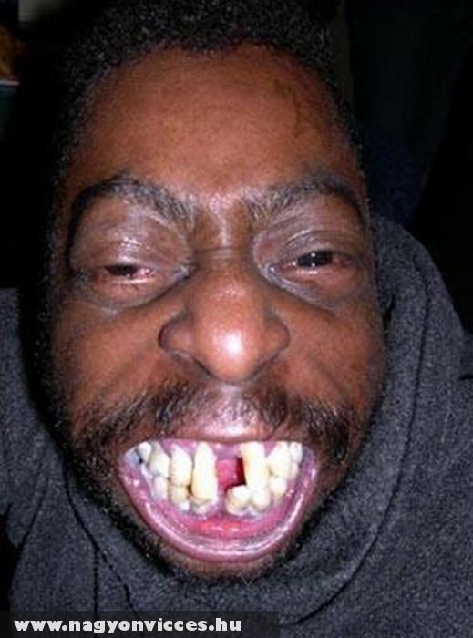 Szép fogak